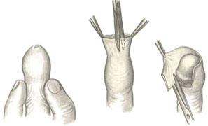 Циркумцизио - операция по обрезанию крайней плоти полового члена