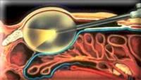 Клиника андрологии и урологии - лапароскопические операции