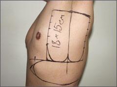 торакодорсальный лоскут