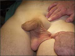 анорхия - врожденное отсутствие яичка