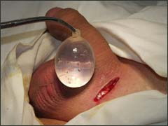 имплантация протеза яичка