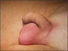 мошонка после имплантации протеза
