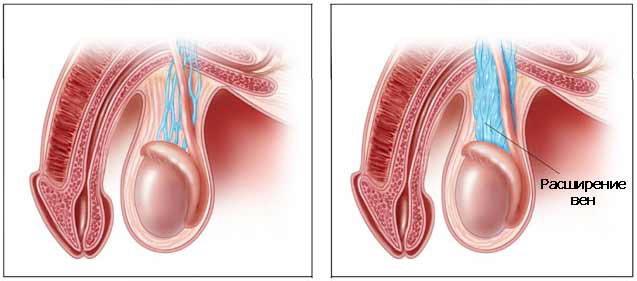 варикоцеле - расширение вен семенного канатика